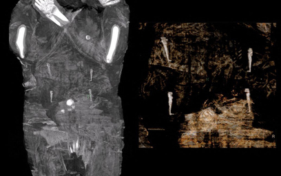 Mumia ciężarnej. Przełomowe odkrycie polskich naukowców