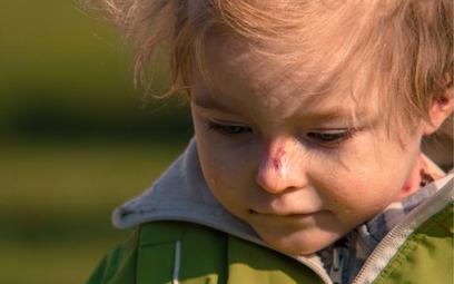 Siedmioletnia Zuzia cierpi na rzadką chorobę genetyczną