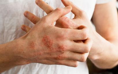 Świąd jest tak silny, że pacjenci drapią się do krwi, a uszkodzona, wysuszona i pękająca skóra zaczy