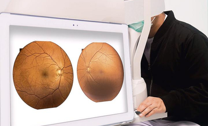 Problemy ze wzrokiem może mieć nawet 3 mld ludzi na świecie. Dostęp do nowoczesnych badań jest jedna