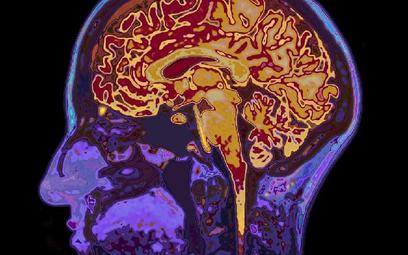 Cząsteczki ze spalin mogą zwiększać ryzyko zachorowania na chorobę Alzheimera