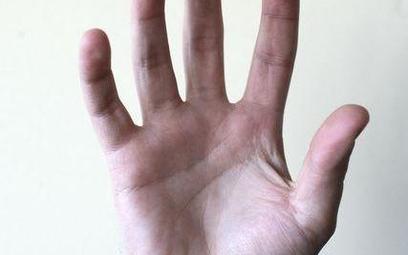 Sztuczna dłoń lepsza niż własna