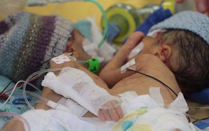 Najmłodsze bliźniaczki syjamskie rozdzielone