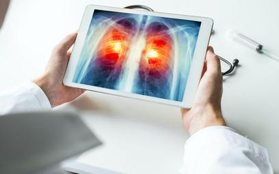 Rak płuca nie poczeka