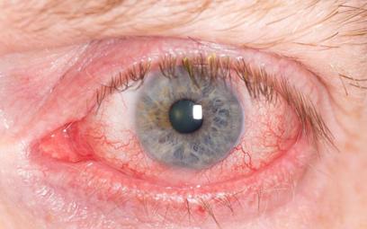 Kibic żużla dostanie 40 tys. zł odszkodowania za kamień w oku